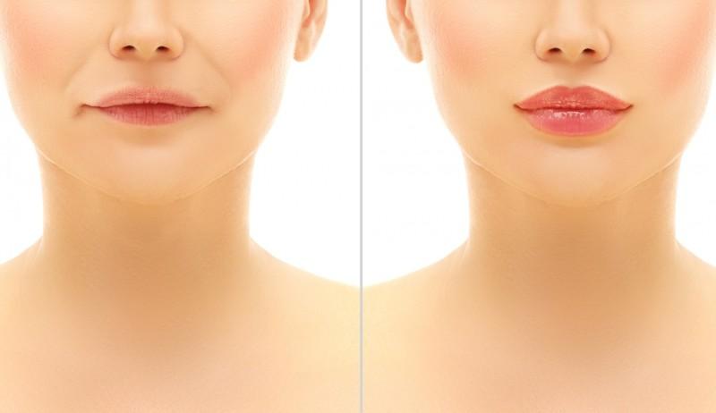 Подтяжка губ становится популярней, чем инъекции красоты