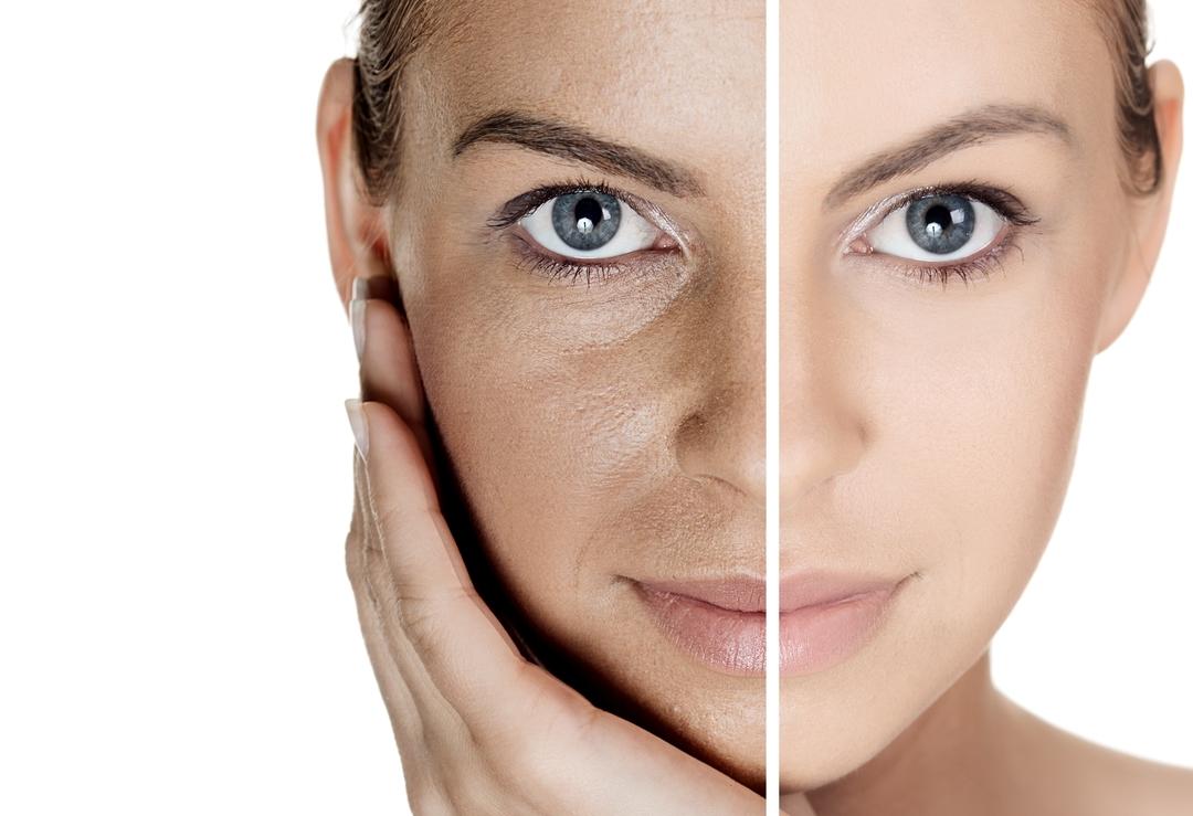 Умеренное похудение омолаживает кожу лица на клеточном уровне
