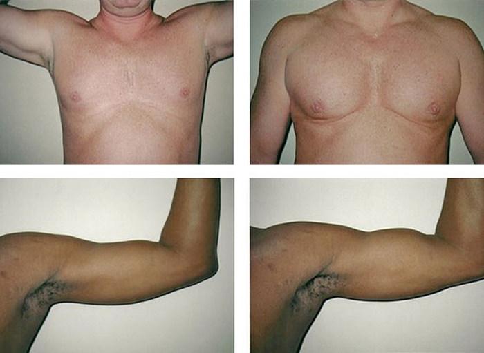 Накаченные бицепсы и идеальная грудь: пластические операции для мужчин, улучшающие внешний вид мышц
